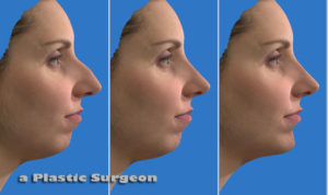 Things to Do Before You Pick a Plastic Surgeon