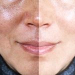 Hyperpigmentation And Its Treatment Modalities