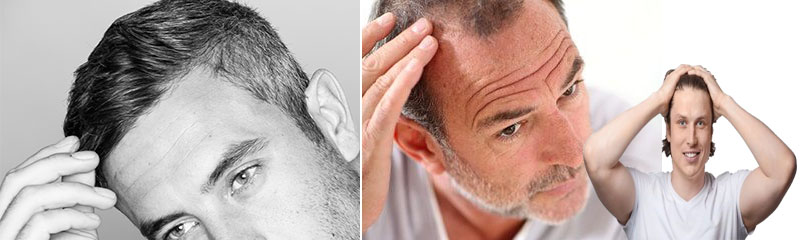 Vital Tips on How to Find a Reliable Hair Restoration Clinic