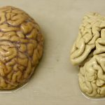 Alzheimer's Disease – Plaques and Tangles inside Brain
