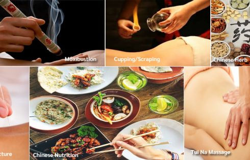 Basics of the traditional Chinese medicine