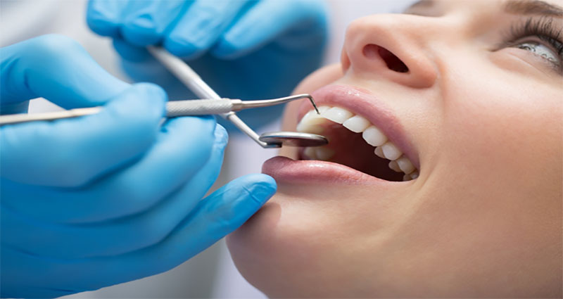 5 Tips to Choose a Perfect Dental Treatment